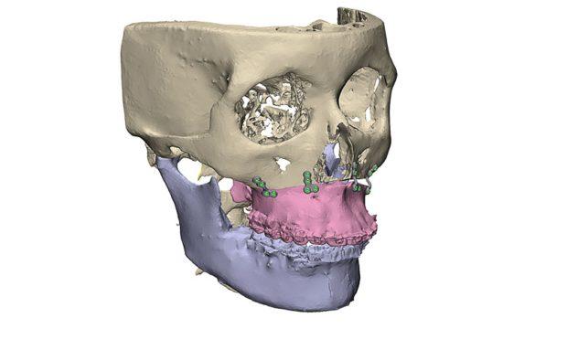 Orthognatische-Chirurgie2
